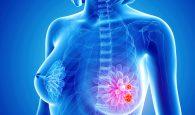 tìm hiểu về căn bệnh ung thư vú