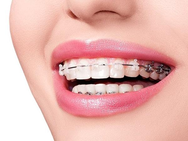 Giải mã xu hướng niềng răng đang được quan tâm nhất hiện nay